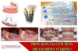 trồng răng giả có sử dụng bảo hiểm y tế không