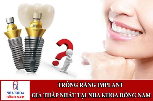 trồng răng implant giá thấp nhất tại nha khoa đông nam