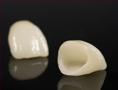 trồng răng sứ cercon hiện nay giá bao nhiêu 1