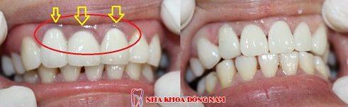 trồng răng sứ cercon hiện nay giá bao nhiêu 2