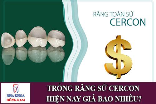 trồng răng sứ cercon hiện nay giá bao nhiêu