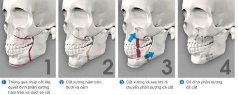 trường hợp nào cần phải phẫu thuật hàm hô 1
