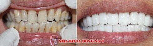 tuổi thọ của răng toàn sứ cao cấp zirconia 1