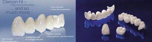 tuổi thọ của răng toàn sứ cao cấp zirconia 2