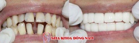 tuổi thọ của răng toàn sứ cao cấp zirconia 3