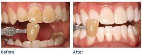 trồng răng sứ thẩm mỹ