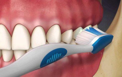 chia sẻ cách vệ sinh răng giả tháo lắp không phải ai cũng biết 4