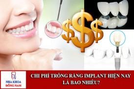 chi phí trồng răng implant hiện nay là bao nhiêu