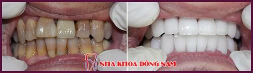 chi phí trồng răng sứ vĩnh viễn 4