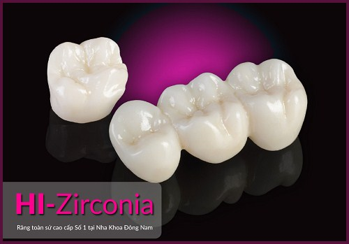 chi phí trồng răng sứ vĩnh viễn 5