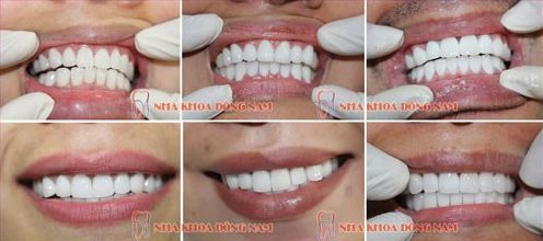 chi phí trồng răng sứ vĩnh viễn 6