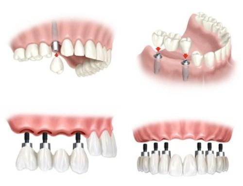 Phân Biệt Phương Pháp Trồng Răng Implant Và Cầu Răng Sứ-3