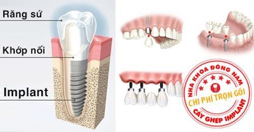 Phân Biệt Phương Pháp Trồng Răng Implant Và Cầu Răng Sứ-6