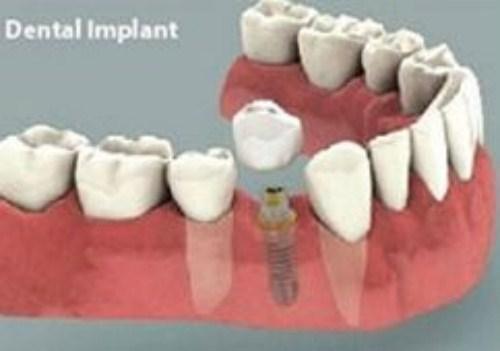 Phân Biệt Phương Pháp Trồng Răng Implant Và Cầu Răng Sứ-9