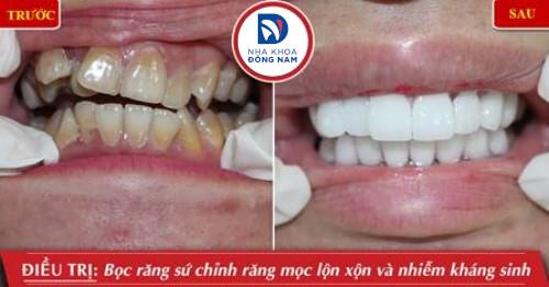 Quy trình trồng răng sứ như thế nào