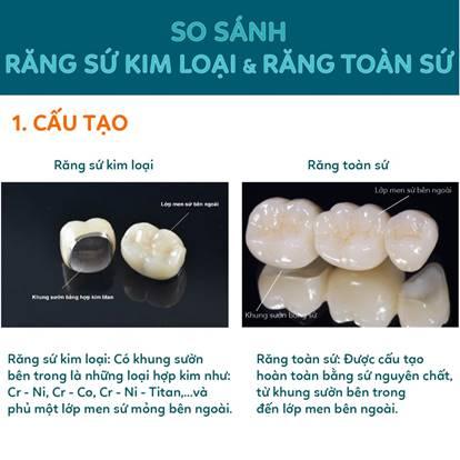So sánh răng sứ kim loại và răng toàn sứ về cấu tạo