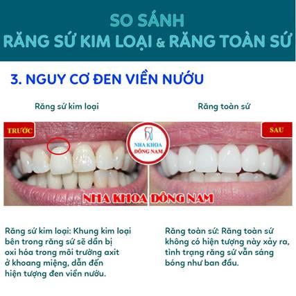 Nguy cơ đen viền nướu khi trồng răng sứ