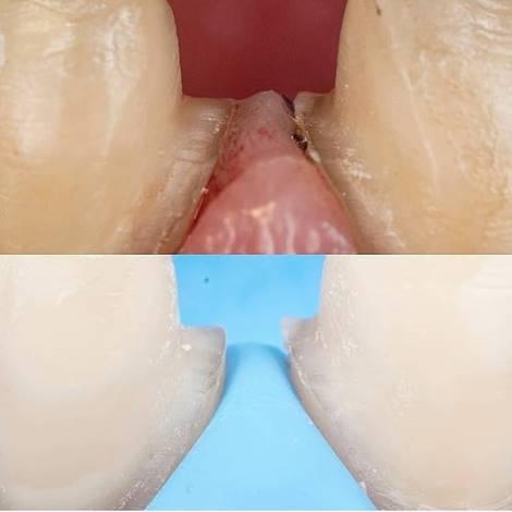 tỷ lệ mài cùi răng khi trồng răng sứ