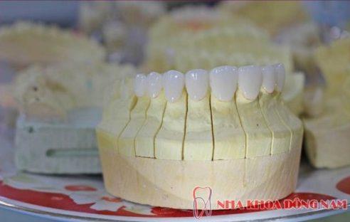 Mẫu răng sứ tại nha khoa Đông Nam