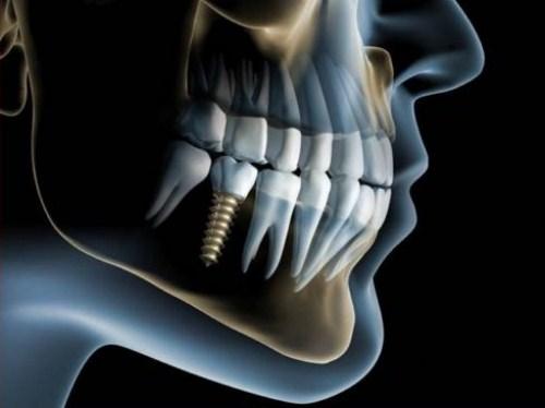 Thời Điểm Nào Thích Hợp Để Trồng Răng Implant