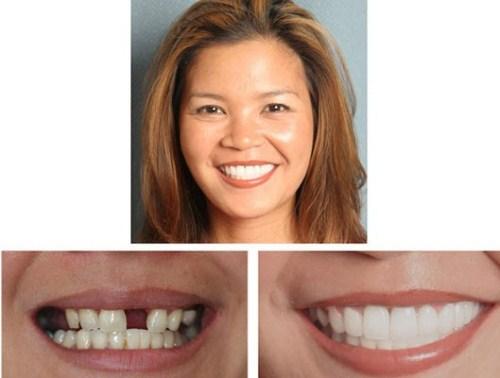 Thời Điểm Nào Thích Hợp Để Trồng Răng Implant 4