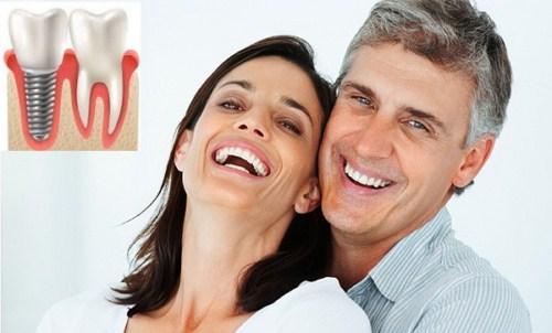 Thời Điểm Nào Thích Hợp Để Trồng Răng Implant 5