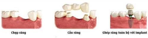 Thời Điểm Nào Thích Hợp Để Trồng Răng Implant 6