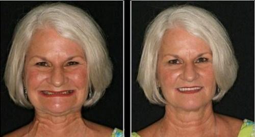 Thời Điểm Nào Thích Hợp Để Trồng Răng Implant 7