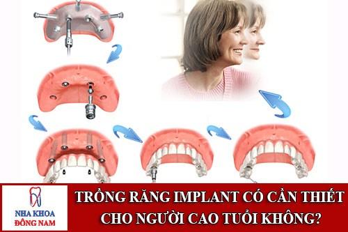 Trồng Răng Implant Có Cần Thiết Cho Người Cao Tuổi Không_