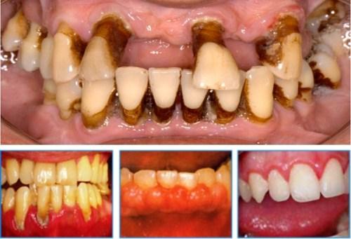 Trồng Răng Implant Có Cần Thiết Cho Người Cao Tuổi Không_1