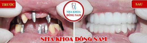 Trồng Răng Implant Có Cần Thiết Cho Người Cao Tuổi Không_6