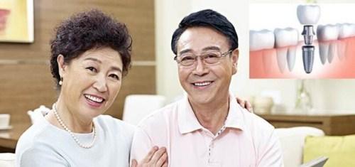 Trồng Răng Implant Khó Và Phức Tạp Đến Mức Nào_5