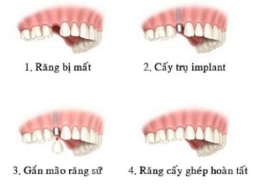 Bao nhiêu tuổi thì trồng răng implant