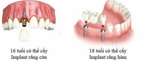 Bao nhiêu tuổi thì trồng răng implant 7