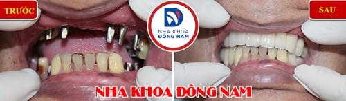 Bao nhiêu tuổi thì trồng răng implant 9