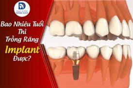Bao Nhiêu Tuổi Thì Trồng Răng Implant Được?