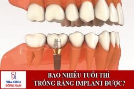 bao nhiêu tuổi thì trồng răng implant được1