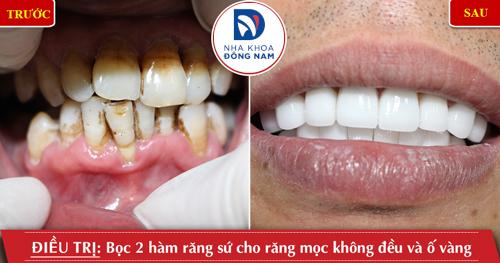 Bọc 2 hàm răng sứ cho răng bị ố vàng và không đều
