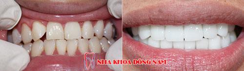 bọc răng sứ 16 cái zirconia 22092016