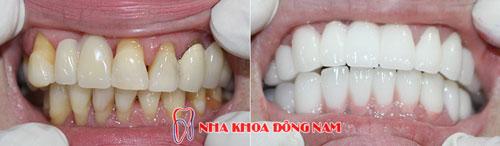 bọc răng sứ 2 hàm zirconia 22092016