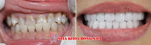 bọc răng sứ 20 cái Zirconia -22082016