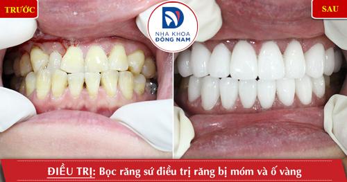 Bọc răng sứ điều trị răng bị móm và ố vàng