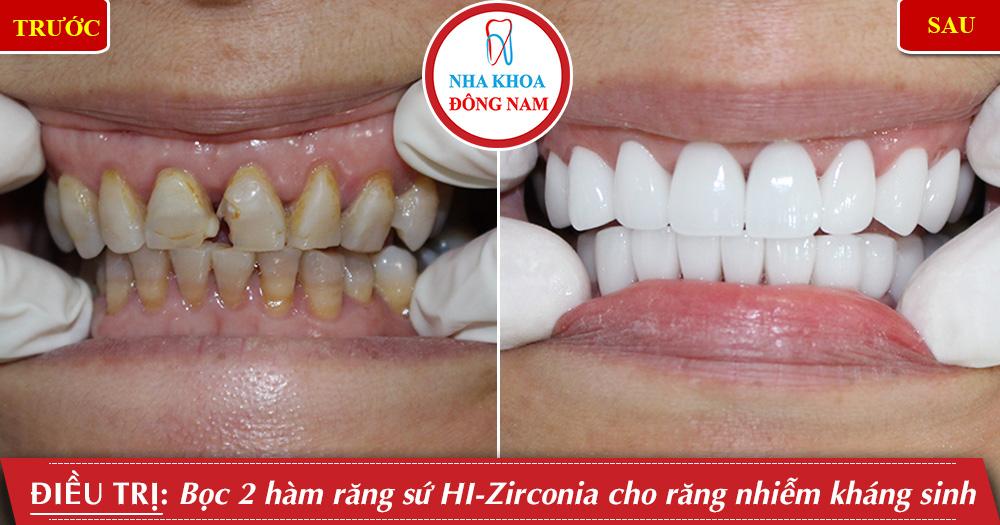 trường hợp bọc răng sứ HI-Zirconia tại nha khoa đông nam
