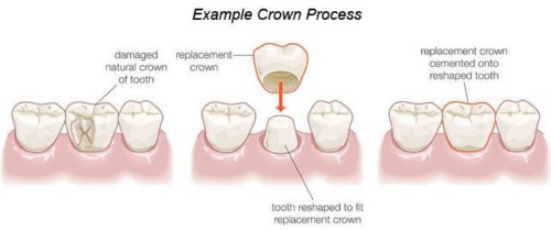 các vấn đề thường gặp sau khi trồng răng sứ 1