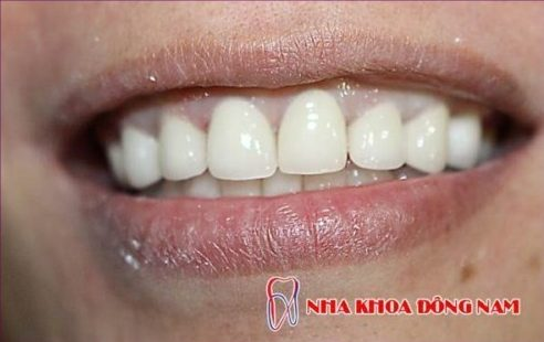 các vấn đề thường gặp sau khi trồng răng sứ 2