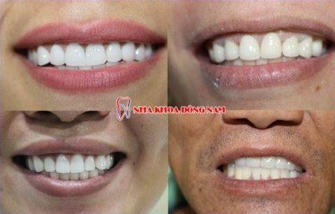các vấn đề thường gặp sau khi trồng răng sứ 4