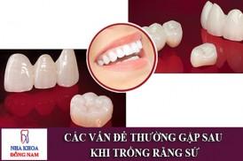 các vấn đề thường gặp sau khi trồng răng sứ