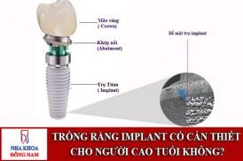 Cấu tạo bề mặt trụ implant có vai trò như thế nào