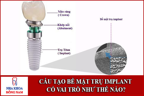 Cấu Tạo Bề Mặt Trụ Implant Có Vai Trò Như Thế Nào-