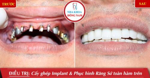 Cấy ghép Implant phục hình răng sứ toàn hàm trên